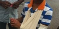 Padova: grave violenza razzista, vittime due minorenni